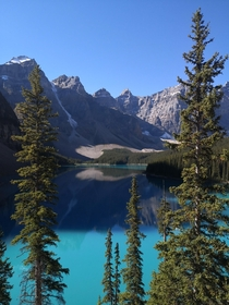 Had to jump on the bandwagon with my shot of Reddit Lake Moraine Lake AB Canada last September looking different on a sunny day no edits or filters at all
