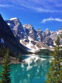 Typical summer day at Moraine lake