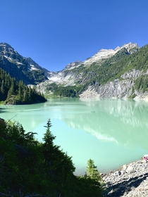 Yes Thats the real color of the water Blanca Lake WA